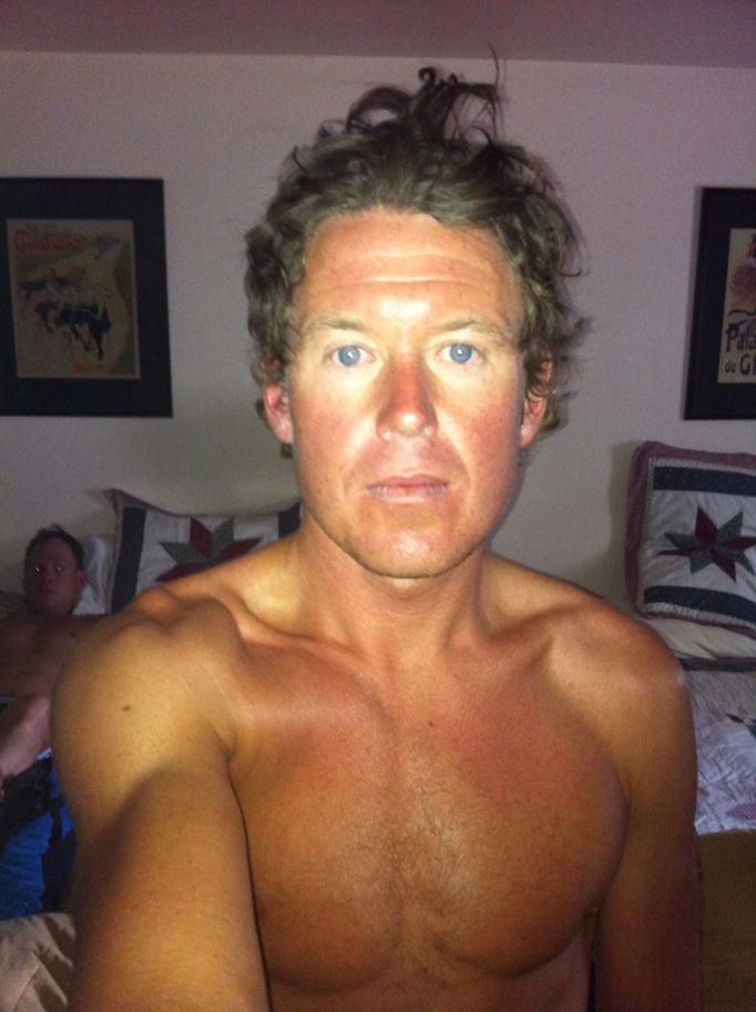 Trött med konstig solbränna och utan hårgele